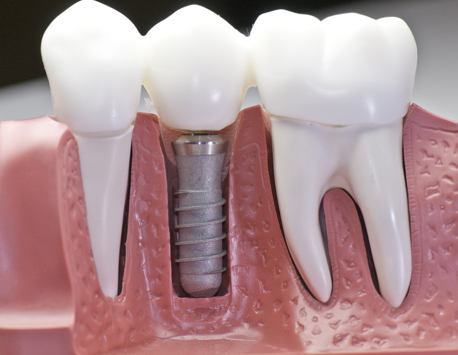Everything to know about dental implants in Hawkesbury